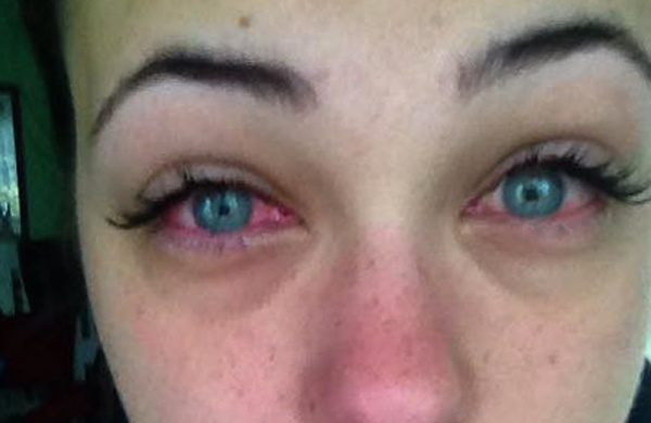 Минусы наращивания ресниц: аллергия на клей