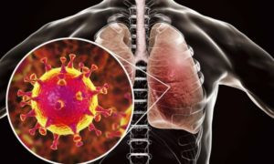 Разница между атипичной пневмонией и коронавирусом